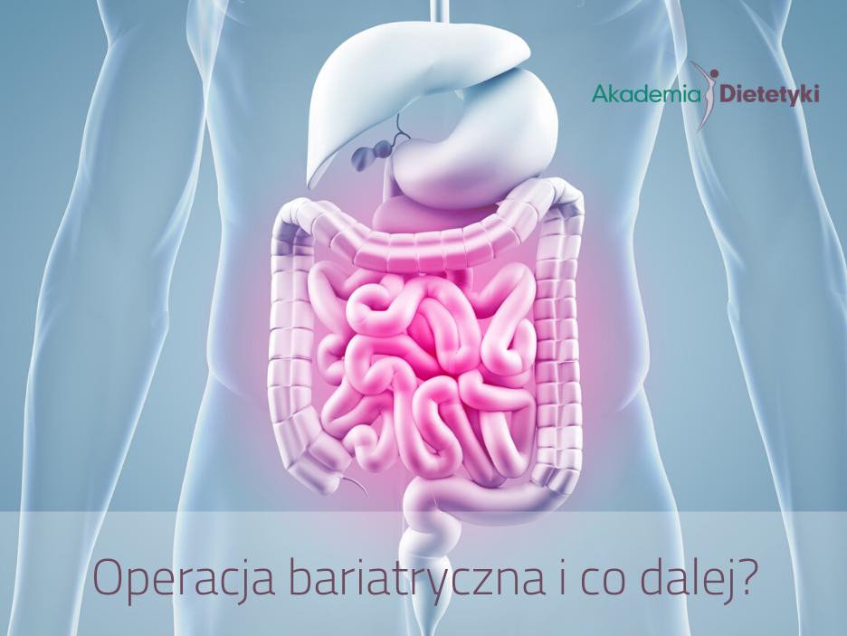 Operacja bariatryczna i co dalej?
